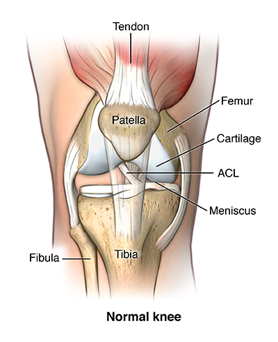 Anterior view of knee joint comparing normal vs. damaged cartilage